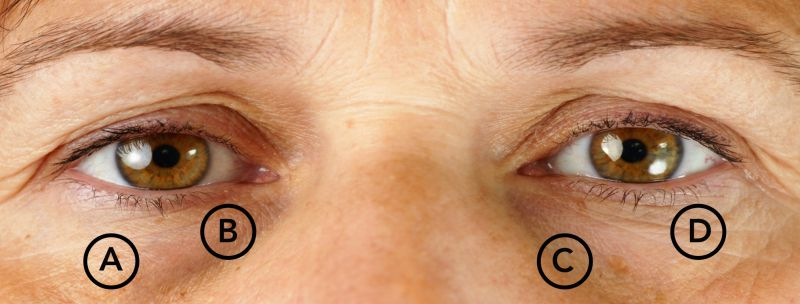 Lasers, Fillers, Radiofrequency for Dark Eye Rings, Crow's Feet, Tear Troughs | LS Aesthetic Clinic