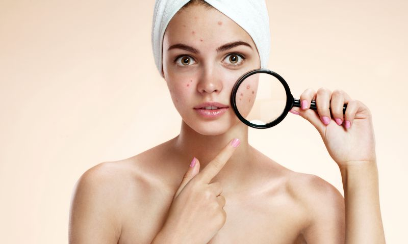 5 Common Misconceptions About Acne | LS Aesthetic Clinic
