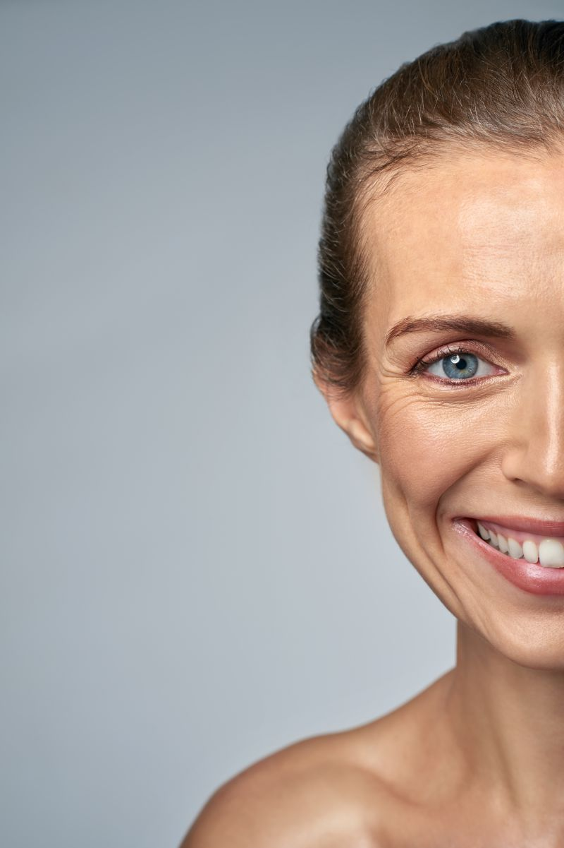 Anti-Wrinkle Injections forCrow's Feet, Frown Lines | LS Aesthetic Clinic