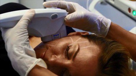 Ultherapy Treatments for Undereye Skin Tightening | LS Aesthetic Clinic