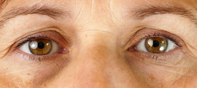Filler Injections for Sunken Tear Troughs, Sunken Eyes | LS Aesthetic Clinic