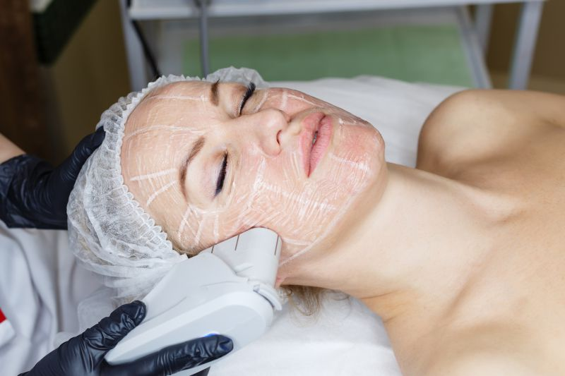 Ultherapy for Skin Lifting & Tightening and Collagen Production