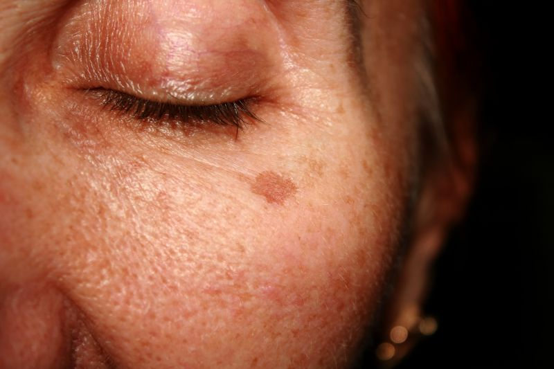 Pigmentation Laser Treatments | LS Aesthetic Clinic