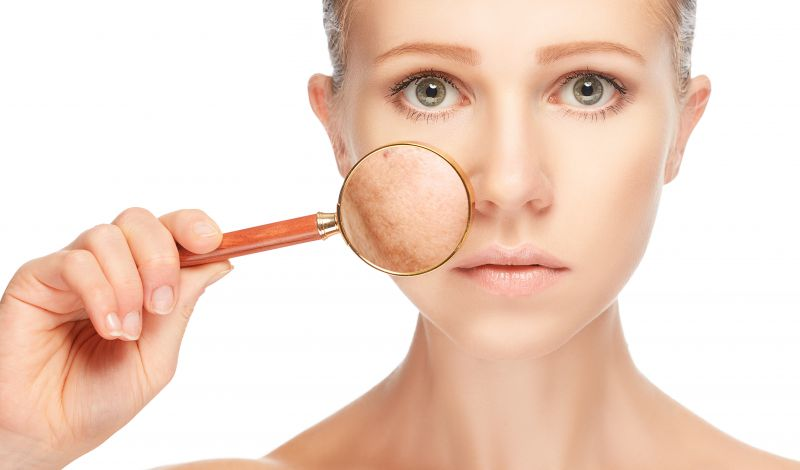 Laser Treatments for Melasma, Freckles, Pigmentation | LS Aesthetic Clinic
