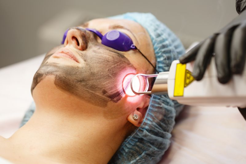 Carbon Laser Peel vs Chemical Peels | LS Aesthetic Clinic