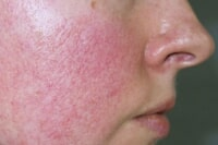 Rosacea Laser Treatments in Singapore | LS Aesthetic Clinic