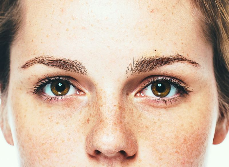 Laser Treatments, Creams for Melasma, Freckles, Age Spots in Singapore | LS Aesthetic Clinic