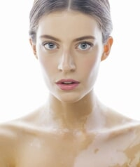 Laser Treatments, Chemical Peels for Melasma, Freckles, Age Spots in Singapore | LS Aesthetic Clinic