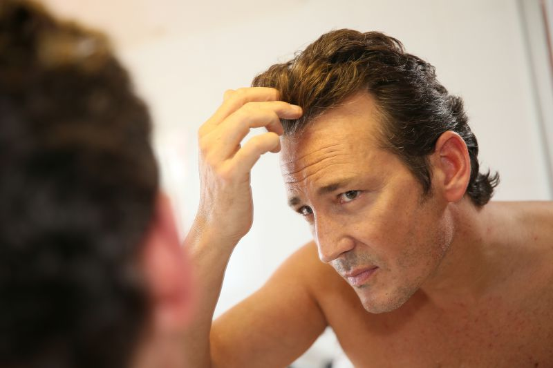 Medicines, Shampoos, Serums, Infrared Light Therapy for Hair Loss   LS Aesthetic Clinic
