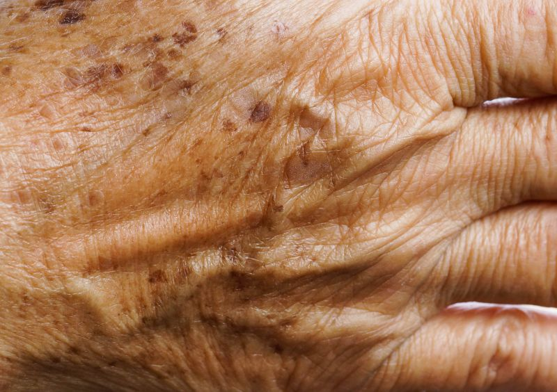 Hand Rejuvenation with Fillers, Chemical Peels, & Laser Treatments | LS Aesthetic Clinic