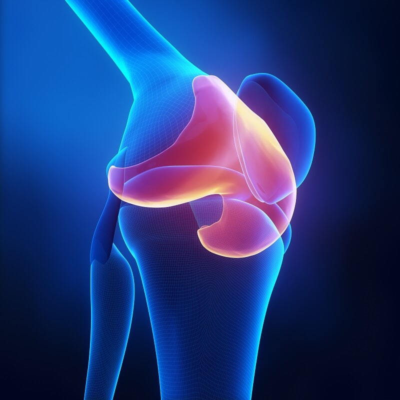 Unicondylar Knee Replacement Surgery