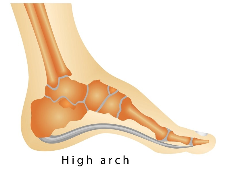 High Arched Foot (Pes Cavus)